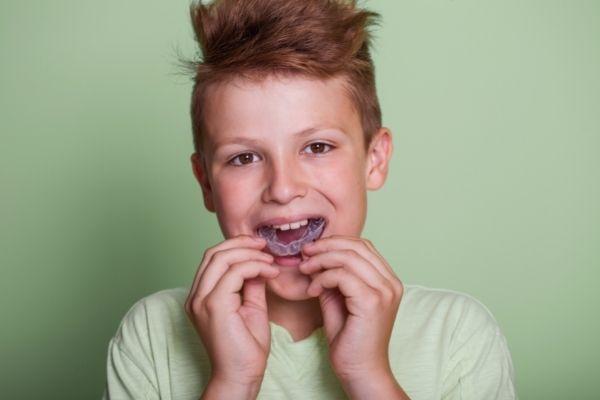 Protecteur buccal - Clinique dentaire SOS Sourire (1)