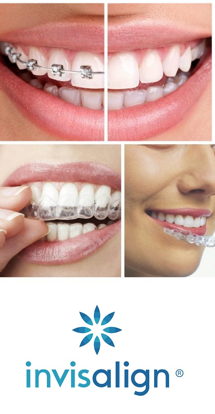 Orthodontie Invisalign - Clinique dentaire SOS Sourire à Verdun 4