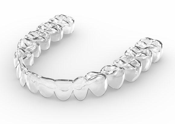 Orthodontie – Traitement Invisalign