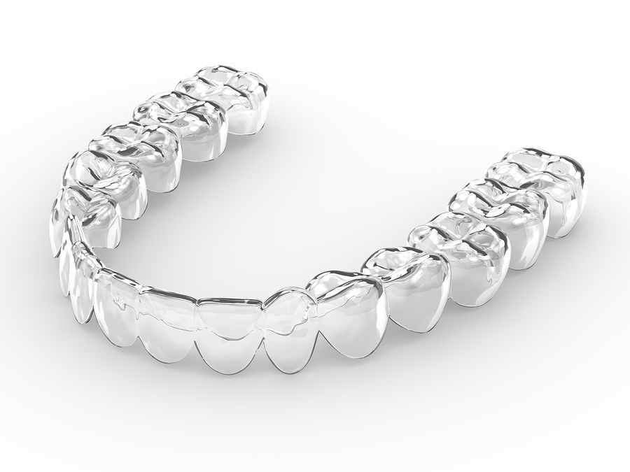 Orthodontie Invisalign - Clinique dentaire SOS Sourire à Verdun